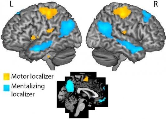Imagen de resonancia magnética del cerebro por Roel Williams y Annabel Nijhof