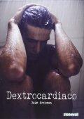 Dextrocardiaco